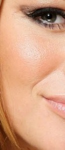 acido hialuronico arrugas
